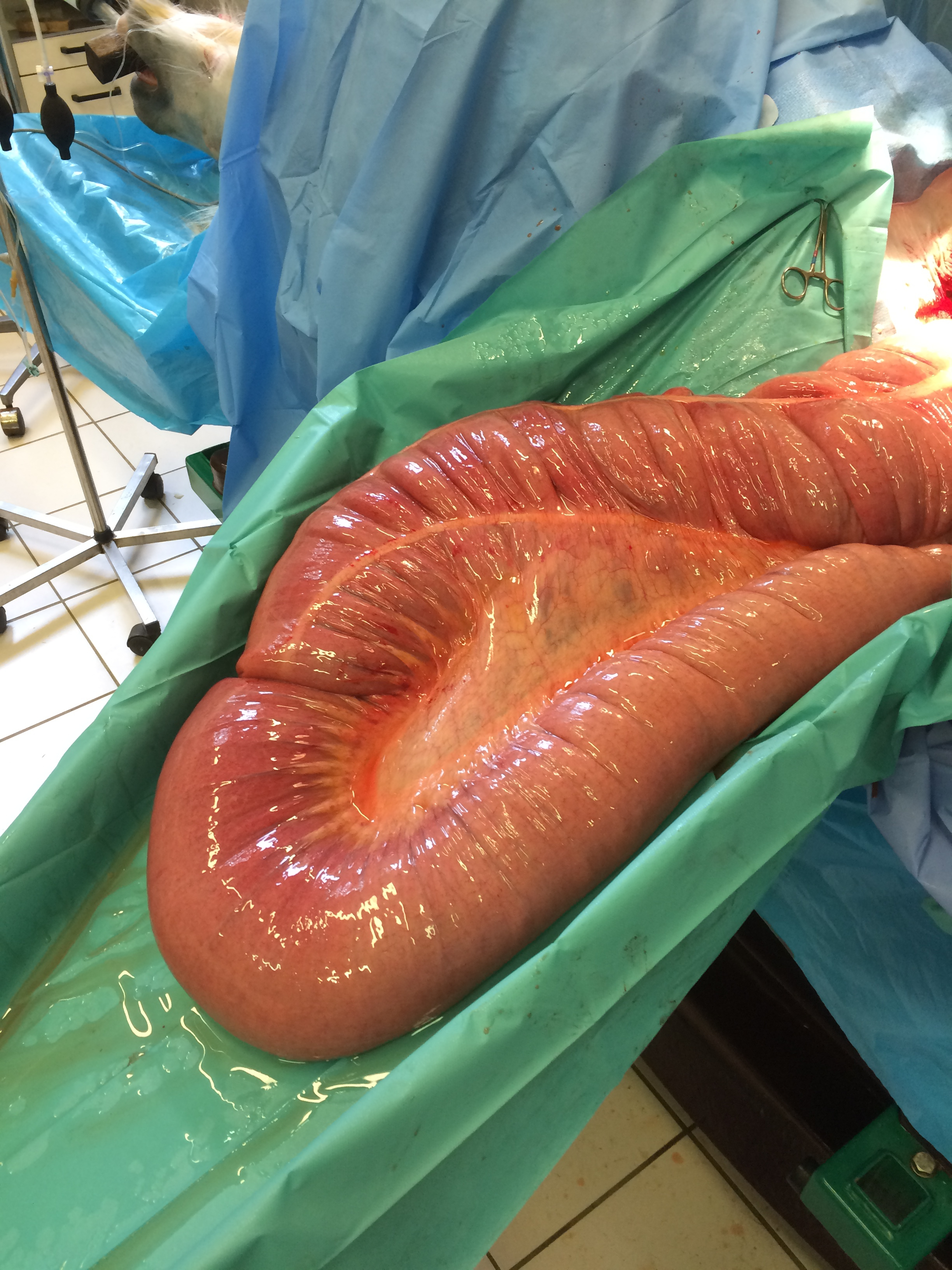 Pelvic flexure enterotomy