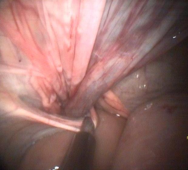 Internal inguinal ring