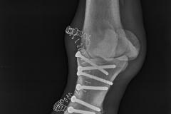 Osteosynthesis Fx P1.2